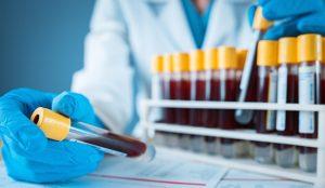 Eine Person sortiert Blutabnahmeröhrchen in eine Halterung ein