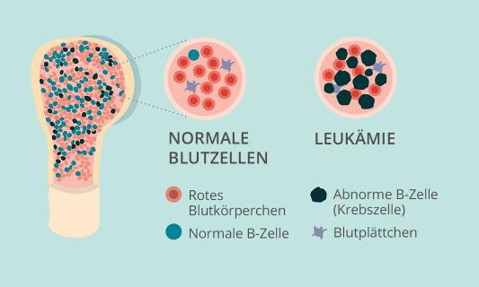 Illustration von normalen Blutzellen vs. Leukämie Blutzellen
